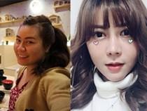 Sang Hàn Quốc thẩm mỹ, sau một tháng cô gái nhận được kết quả hết sức ngỡ ngàng