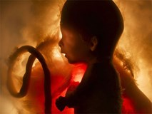 """5 dấu hiệu báo thai nhi đang """"kêu cứu"""" từ trong bụng mẹ"""