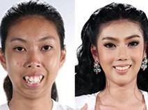 Màn vịt hóa thiên nga ngoạn mục của cô gái Thái không cằm, răng hô khiến dân tình sửng sốt