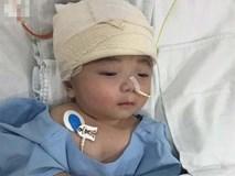 Một ngày sau cuộc tiểu phẫu, em bé não úng thuỷ Phạm Đức Lộc đã biết mở mắt, cử động tay chân