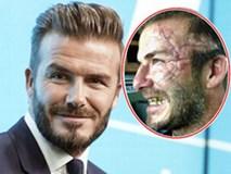 David Beckham dọa fan chết khiếp với khuôn mặt đầy sẹo và răng vàng ố