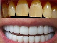 Cao răng, mảng bám ố vàng cứng như đá cũng bong ra nhờ trộn oxy già với thứ này