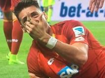 Sao Bundesliga gãy gập ngón tay kinh dị