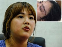 Cô gái bị 20 thanh niên truy sát vì tố giác tội phạm: Mắt trái có nguy cơ mù hoàn toàn