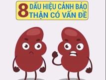 8 dấu hiệu cảnh báo thận không khỏe