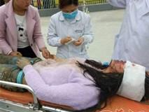 Nữ sinh trung học bị kẻ hiếp dâm tấn công đến mù mắt trên đường đi học