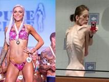 Từ một bộ xương di động, cô gái lột xác và giành chức vô địch thể hình chỉ sau 18 tháng