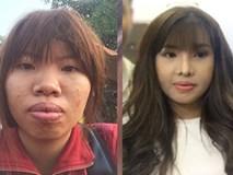 Cô gái Đăk Nông từng khốn khổ vì bị chê xấu nay đã lột xác ngoạn mục sau 1 tháng