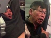 """Luật sư: """"David Dao bị choáng, gãy mũi và răng"""""""
