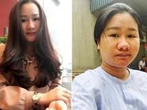 Khó nhận ra bà bầu từng trăn trở vì ngoại hình xấu xí cách đây hơn nửa năm