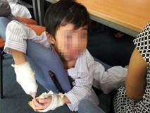 Bé trai bị điện giật chỉ còn 5 ngón tay lành lặn trong ngày xuất viện
