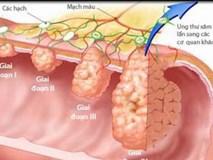 """3 cách phát hiện sớm, loại bỏ ung thư đại trực tràng từ """"trứng nước"""""""