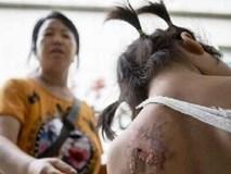 Bé gái 2 tuổi tử vong vì bị mợ phun nước nóng vào người sau khi tè dầm