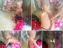 Dùng lươn bò lên người để hạ sốt cho trẻ, cách làm đang gây sốc các bà mẹ bỉm sữa