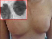 Bơm silicon để ngực to như phụ nữ, nam thanh niên phải nhận cái kết đắng