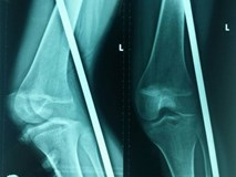 Tránh đống vật liệu bên đường, nữ sinh bị que sắt đâm thấu chân
