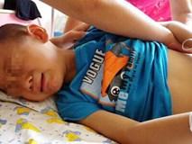 Bé trai 7 tuổi đột ngột đau bụng, người lớn không để ý, vài tiếng sau bi kịch xảy ra