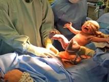 """Video: Em bé tự """"bật"""" ra khỏi bụng mẹ bằng sinh mổ tự nhiên"""