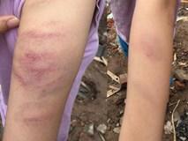 Hà Nội: Làm thiếu bài tập, học sinh bị giáo viên đánh bầm tím tay
