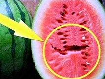 Thích ăn dưa hấu đến mấy mà thấy dấu hiệu này thì phải vứt đi ngay