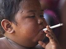 Cậu bé 2 tuổi từng hút 40 điếu thuốc lá/ngày giờ ra sao?