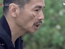 Diễn viên Lương Bổng 'Người phán xử' cháy da mặt vì vết sẹo hóa trang