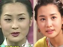 """Những mỹ nhân châu Á từng kém sắc bỗng """"đổi đời"""" nhờ phẫu thuật thẩm mỹ"""
