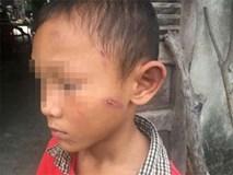 Bé trai 5 tuổi bị dì ruột bạo hành dã man