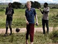 Nỗi sợ bị chặt tay chân của người bạch tạng Malawi