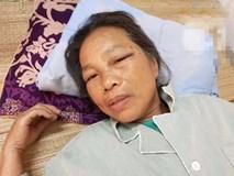 Bà lão gần 70 tuổi bị em trai dùng xẻng tấn công khiến nhập viện cấp cứu