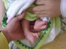 Xót thương bé sơ sinh chào đời với hình dạng bàn tay, bàn chân giống như càng cua