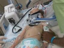 Bé gái 2 tuổi tổn thương não vì bị bảo mẫu là một cậu thiếu niên 16 tuổi trừng phạt