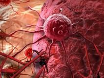 Bác sĩ bệnh viện Việt Đức khuyên 6 điều nên làm ngay để bệnh ung thư không gõ cửa