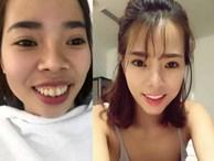 Cô gái chi 200 triệu 'dao kéo' khiến người thân không nhận ra