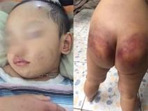 Người mẹ trẻ tiếp tay cho chồng hờ, bạo hành con trai 2 tuổi phải nhập viện cấp cứu?