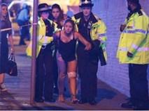 Nổ lớn ở sân vận động Manchester, khiến ít nhất 70 người thương vong