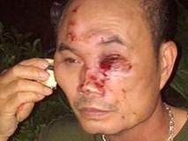 Côn đồ lại đánh người nhập viện tại chung cư Linh Đàm