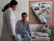 Hi hữu: Người đàn ông bị cả chục mảnh gỗ găm vào mắt, một năm sau mới phát hiện ra