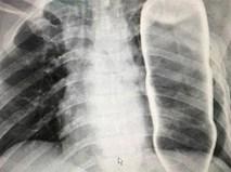 Phát hiện vỏ chai thủy tinh chui tọt trong lồng ngực một người đàn ông ở Quảng Nam