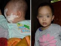 Gặp lại cô bé mới 6 tháng tuổi đã bị kẻ ác chém trọng thương bên thi thể người mẹ