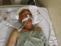 Bệnh nhân hôn mê sâu đang nằm tại Bệnh viện E không có người nhà đến nhận