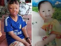 Sau 6 năm, cậu bé biến dạng vì bị cha ruột đổ xăng đốt giờ ra sao?