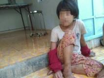 Tương lai mờ mịt của bé gái từng bị mẹ cắt gân chân