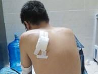 Cảnh sát điều tra băng cướp xe tay ga ở Sài Gòn