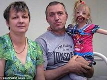 Dị tật lạ khiến bé gái chào đời với nửa khuôn mặt