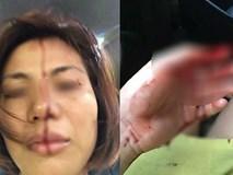 Hà Nội: Người phụ nữ tố bị chồng cũ đánh đập, bạo hành dã man