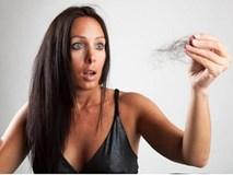 Rụng tóc nhiều bị bệnh gì?