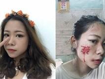 """Sự thật về cô gái xinh xắn bị """"đánh ghen bầm dập"""" khiến dân mạng xôn xao"""
