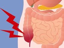 Chỉ mất 5 phút mỗi ngày lọc sạch ruột già trong 1 tuần theo cách của TS Mỹ