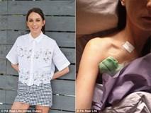 Nữ nhà sản xuất truyền hình thoát khỏi ung thư trực tràng nhờ phát hiện triệu chứng kịp thời